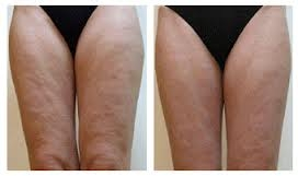 before-and-after-cellulite