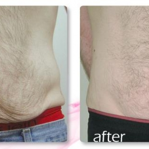 before-and-after-man-skin-tightening