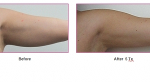 before-and-after-treatment-arms-tightening
